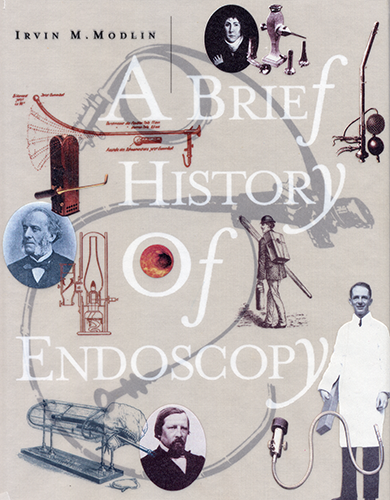 history of endoscopy